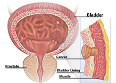 Bladder Cancer Treatment India