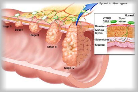 Bone Cancer Treatment