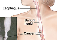 Esophagus Cancer Treatment India