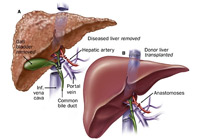 Liver Transplant Surgery India