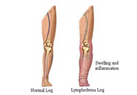 Lymphedema Treatment India