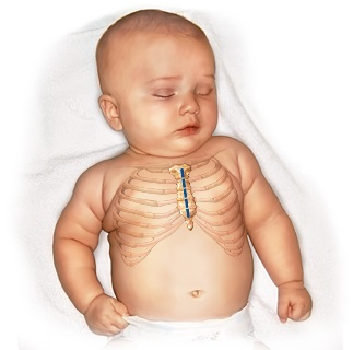 Pediatric Cardiac Surgery India