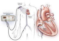 Radio Frequency Cardiac Ablation India