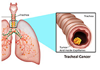 Tracheal Cancer Treatment India