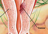 Uterine Cancer Treatment India