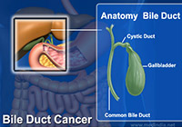 Bile Duct Cancer Treatment India