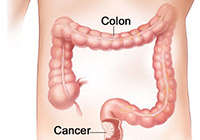 Colon Cancer Treatment India