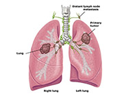 Lung Cancer Treatment India
