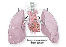 Lung Transplant Surgery India