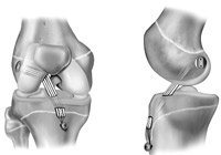 ACL Reconstruction Surgery India
