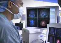 Advanced Epilepsy Surgery India