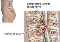 Herniated Discs Spine Surgery in India