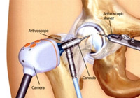 Hip Arthroscopy Surgery India