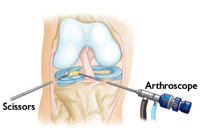 Knee Arthroscopy Surgery India