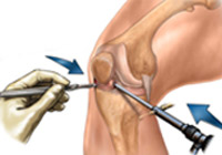Meniscus Repair Surgery India