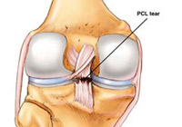 PCL Reconstruction Surgery India