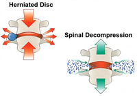 Spinal Decompression Surgery India