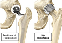 Total Hip Resurfacing Surgery India
