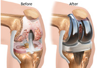 Total Knee Replacement Surgery India