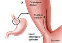 Achalasia Cardia Laparoscopy Surgery India