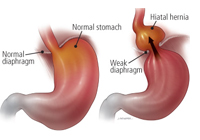 Laparoscopic Hiatus Hernia Surgery India