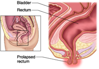 Laparoscopic Rectal Prolapse Surgery India