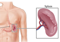 Laparoscopic for Splenectomy India