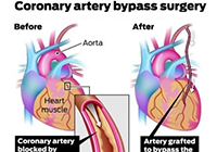 Minimally Invasive Heart Bypass Surgery India