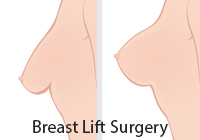 Breast Lift Surgery India