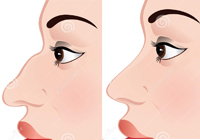 Rhinoplasty Nose Surgery India